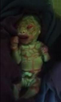 Alien Baby Born in Chhattisgarh India